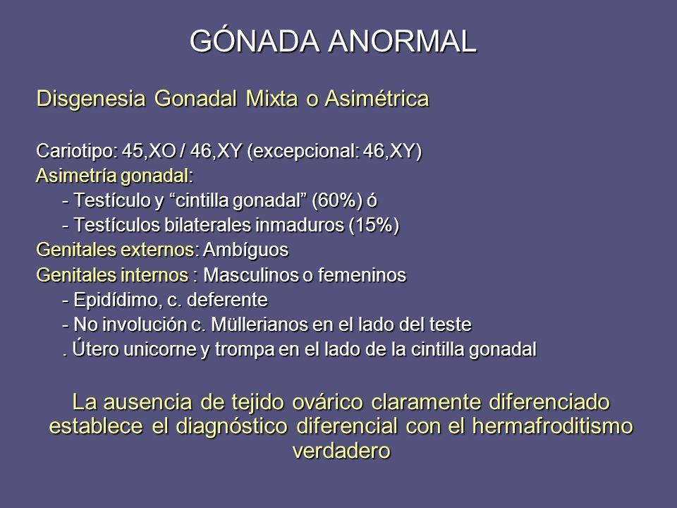 Disgenesia Gonadal Mixta o Asimétrica Cariotipo: 45,XO / 46,XY (excepcional: 46,XY) Asimetría gonadal: - Testículo y cintilla gonadal (60%) ó - Testíc