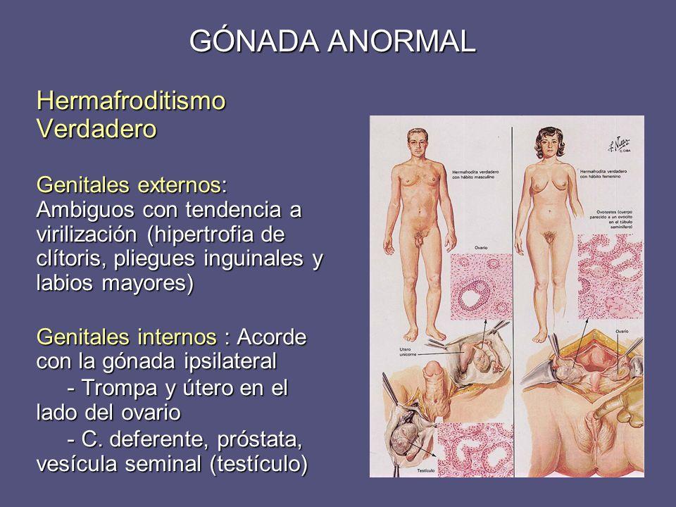 Hermafroditismo Verdadero Genitales externos: Ambiguos con tendencia a virilización (hipertrofia de clítoris, pliegues inguinales y labios mayores) Ge