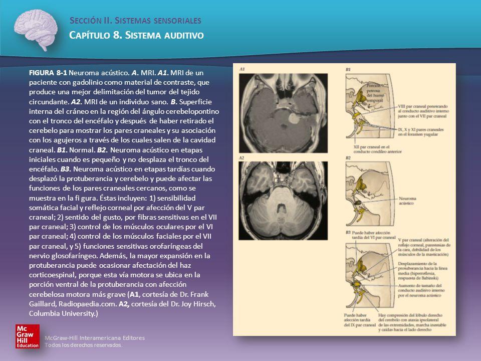 McGraw-Hill Interamericana Editores Todos los derechos reservados. S ECCIÓN II. S ISTEMAS SENSORIALES C APÍTULO 8. S ISTEMA AUDITIVO FIGURA 8-1 Neurom