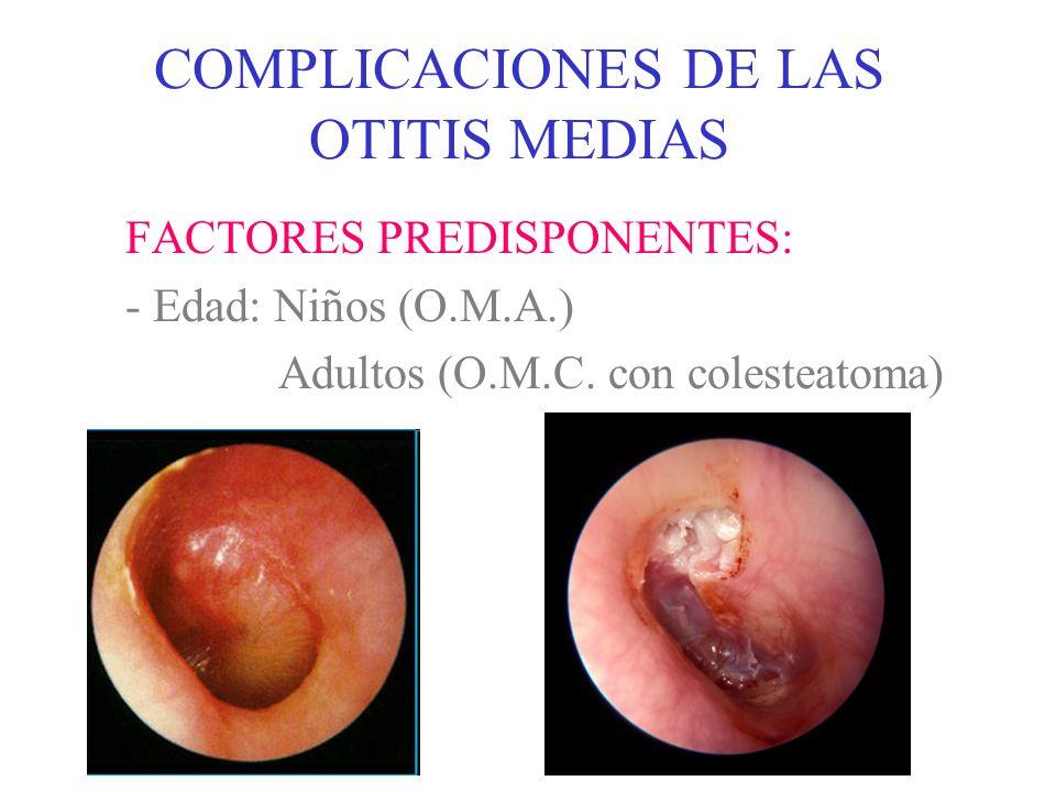 COMPLICACIONES DE LAS OTITIS MEDIAS VÍAS DE PROPAGACIÓN DE LA INFECCIÓN - Habitualmente, propagación directa desde el oído medio: a) Por vía hemática (venas emisarias) b) Por continuidad (vías anatómicas preformadas) c) Por contigüidad (erosiones óseas)
