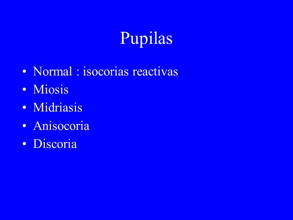 Pupilas Normal : isocorias reactivas Miosis Midriasis Anisocoria Discoria
