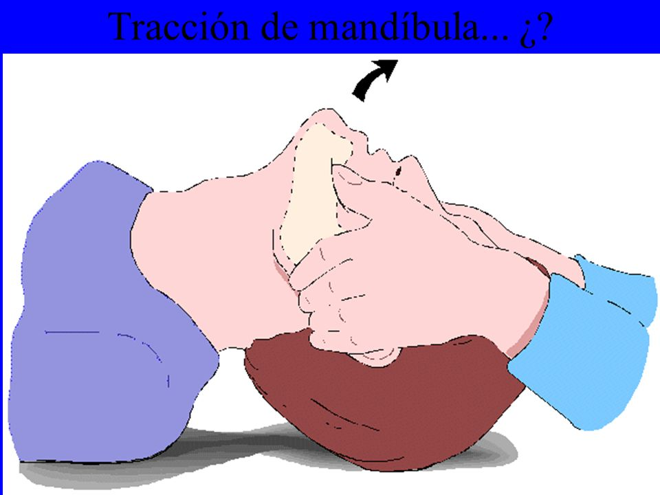 Tracción de mandíbula... ¿?