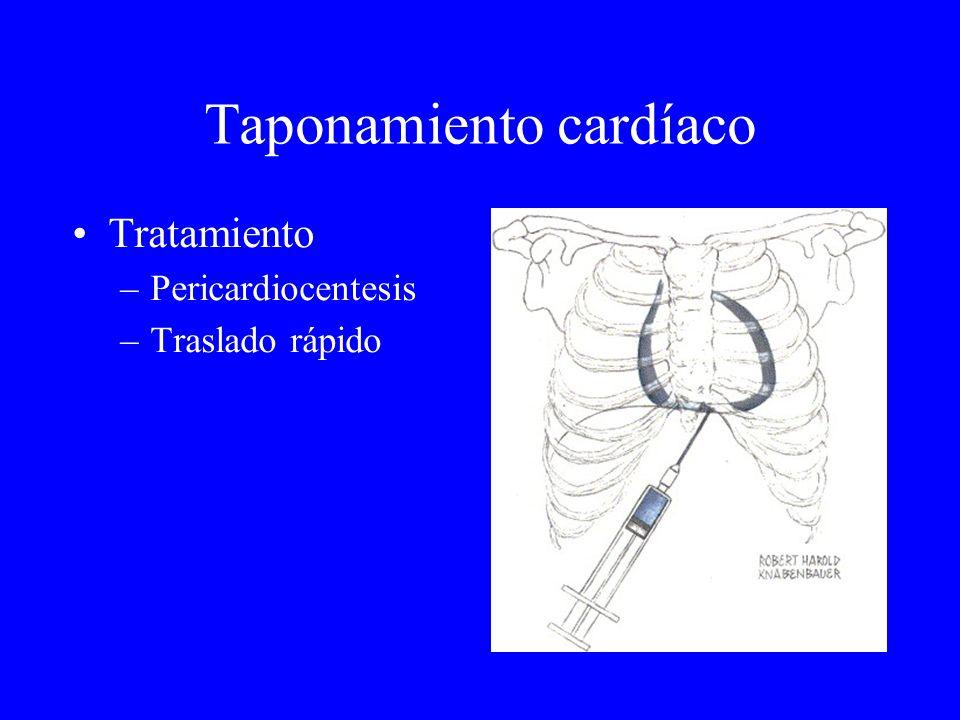 Taponamiento cardíaco Tratamiento –Pericardiocentesis –Traslado rápido