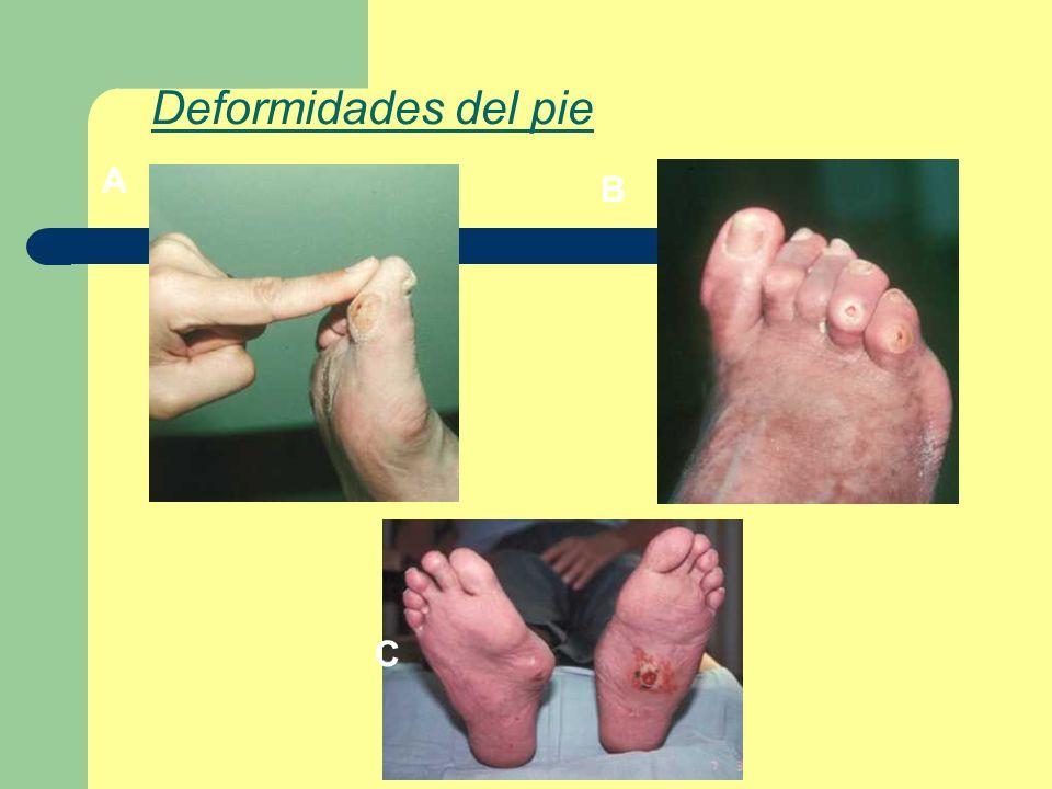 A B C Deformidades del pie