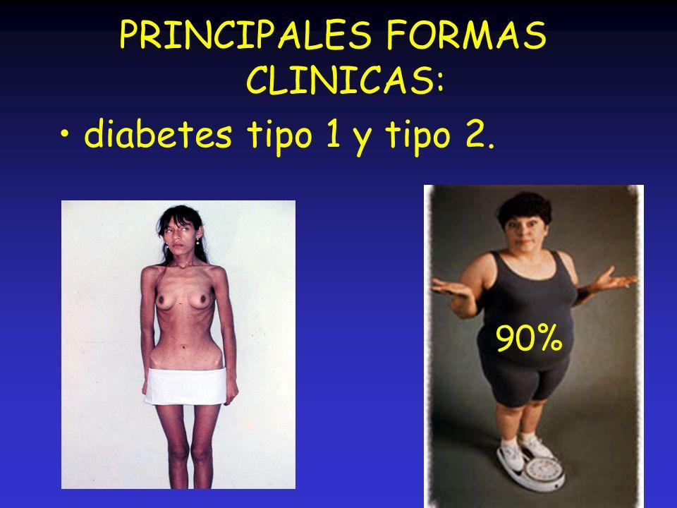 PRINCIPALES FORMAS CLINICAS: diabetes tipo 1 y tipo 2. 90%