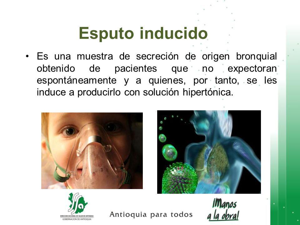 Es una muestra de secreción de origen bronquial obtenido de pacientes que no expectoran espontáneamente y a quienes, por tanto, se les induce a produc