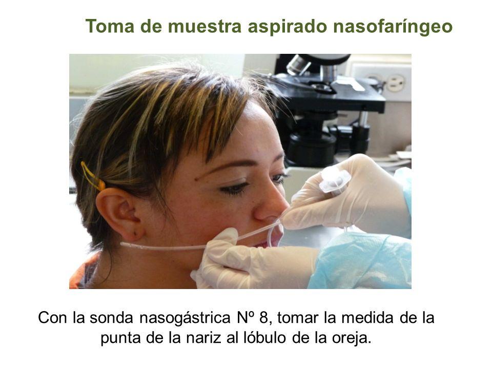 Toma de muestra aspirado nasofaríngeo Con la sonda nasogástrica Nº 8, tomar la medida de la punta de la nariz al lóbulo de la oreja.