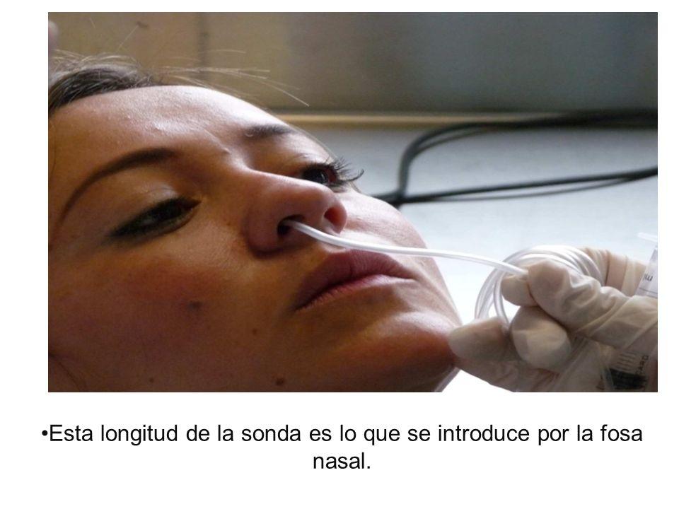Aspirar todo el material de la secreción nasofaríngea que sea posible.