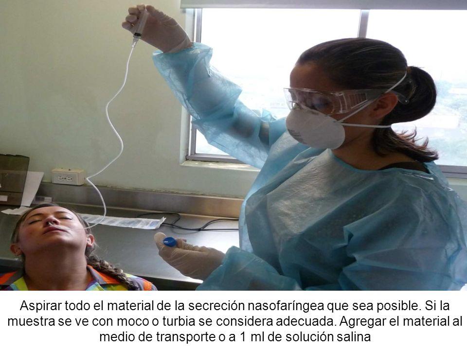 Si no es posible obtener una muestra con la primera nebulización, debe esperarse 30 minutos y repetir el procedimiento.