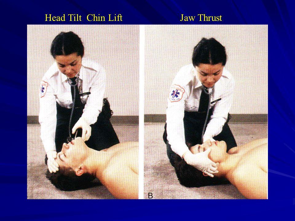 Head Tilt Chin LiftJaw Thrust