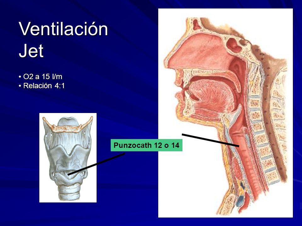 Ventilación Jet O2 a 15 l/m O2 a 15 l/m Relación 4:1 Relación 4:1 Punzocath 12 o 14
