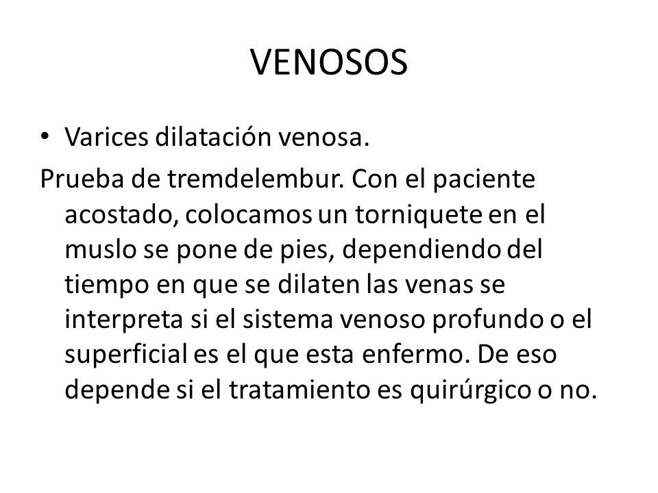 VENOSOS Varices dilatación venosa. Prueba de tremdelembur.