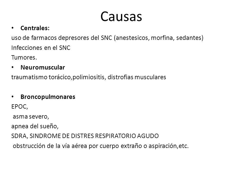 Causas Centrales: uso de farmacos depresores del SNC (anestesicos, morfina, sedantes) Infecciones en el SNC Tumores. Neuromuscular traumatismo torácic