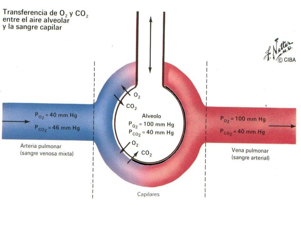 Enfermedades que producen hipoxemia afectando al difusión: 1-Asbestosis: La inhalación de fibras de asbesto puede producir formación de tejido cicatricial (fibrosis) en el interior del pulmón.