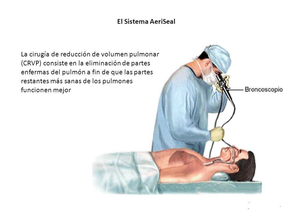 El Sistema AeriSeal La cirugía de reducción de volumen pulmonar (CRVP) consiste en la eliminación de partes enfermas del pulmón a fin de que las parte