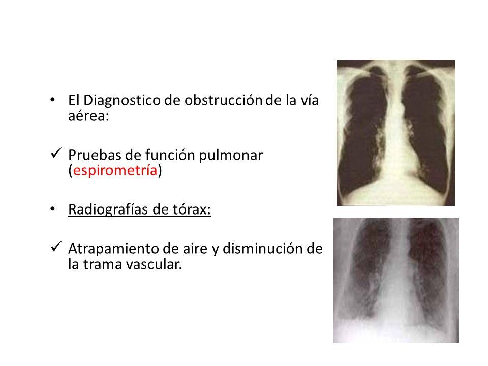 El Diagnostico de obstrucción de la vía aérea: Pruebas de función pulmonar (espirometría) Radiografías de tórax: Atrapamiento de aire y disminución de