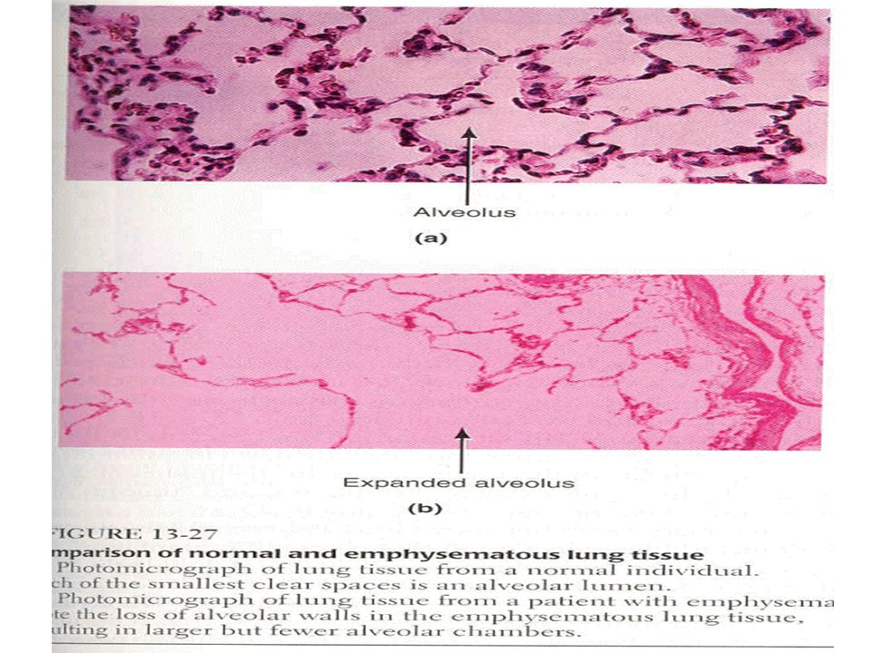 Se distinguen principalmente 4 tipos de enfisema: Centrolobulillar Se caracteriza porque el área afectada está en el lobulillo proximal, en especial por destrucción de los bronquiolos respiratorios y dilatación de los lobulos superiores sin afectar a los alvéolos distales.