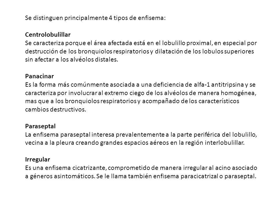 Se distinguen principalmente 4 tipos de enfisema: Centrolobulillar Se caracteriza porque el área afectada está en el lobulillo proximal, en especial p