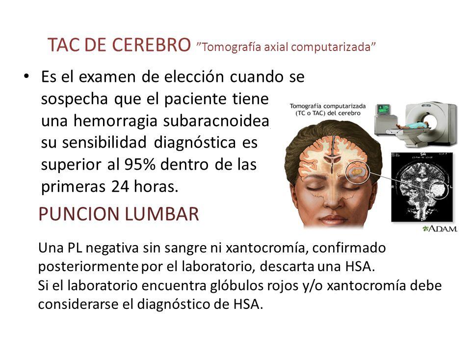 TAC DE CEREBRO Tomografía axial computarizada Es el examen de elección cuando se sospecha que el paciente tiene una hemorragia subaracnoidea; su sensi