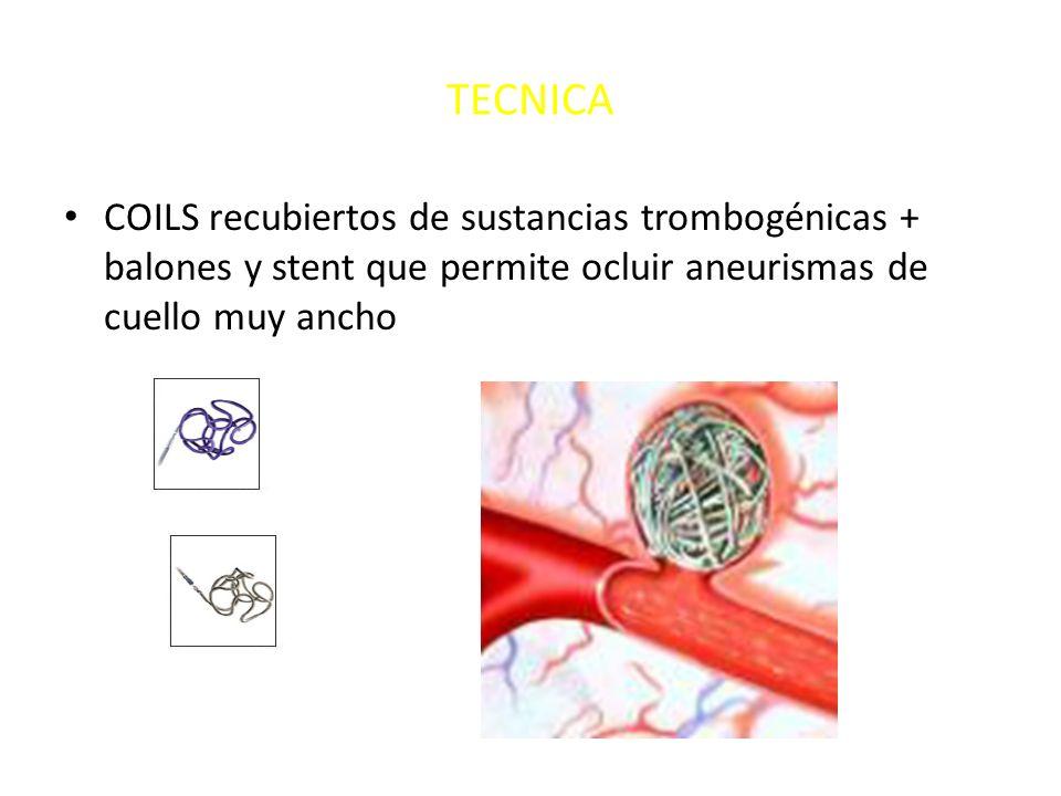 TECNICA COILS recubiertos de sustancias trombogénicas + balones y stent que permite ocluir aneurismas de cuello muy ancho