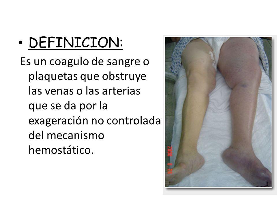 DEFINICION: Es un coagulo de sangre o plaquetas que obstruye las venas o las arterias que se da por la exageración no controlada del mecanismo hemostá