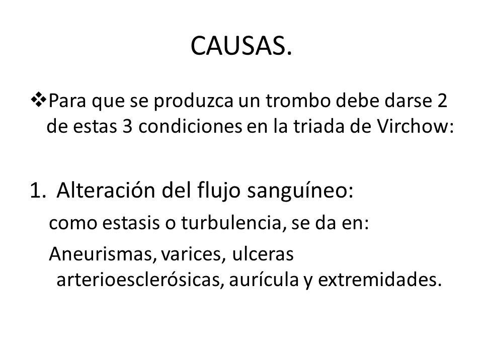 CAUSAS. Para que se produzca un trombo debe darse 2 de estas 3 condiciones en la triada de Virchow: 1.Alteración del flujo sanguíneo: como estasis o t
