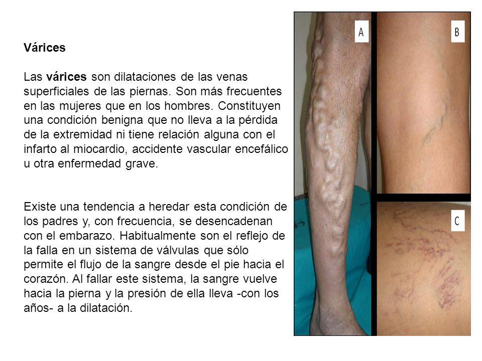 Várices Las várices son dilataciones de las venas superficiales de las piernas. Son más frecuentes en las mujeres que en los hombres. Constituyen una