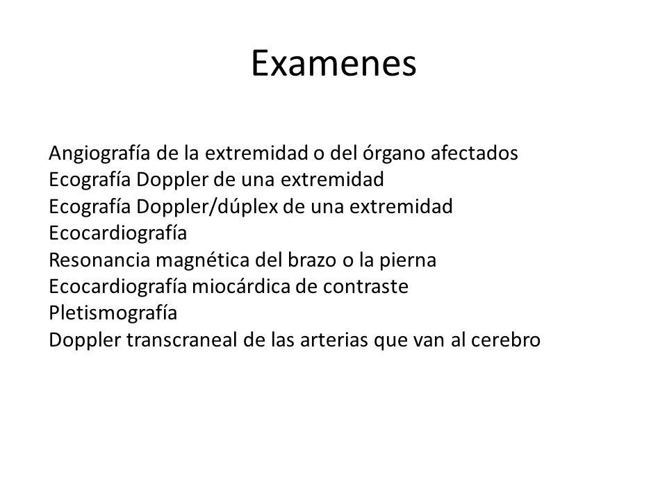 Examenes Angiografía de la extremidad o del órgano afectados Ecografía Doppler de una extremidad Ecografía Doppler/dúplex de una extremidad Ecocardiog