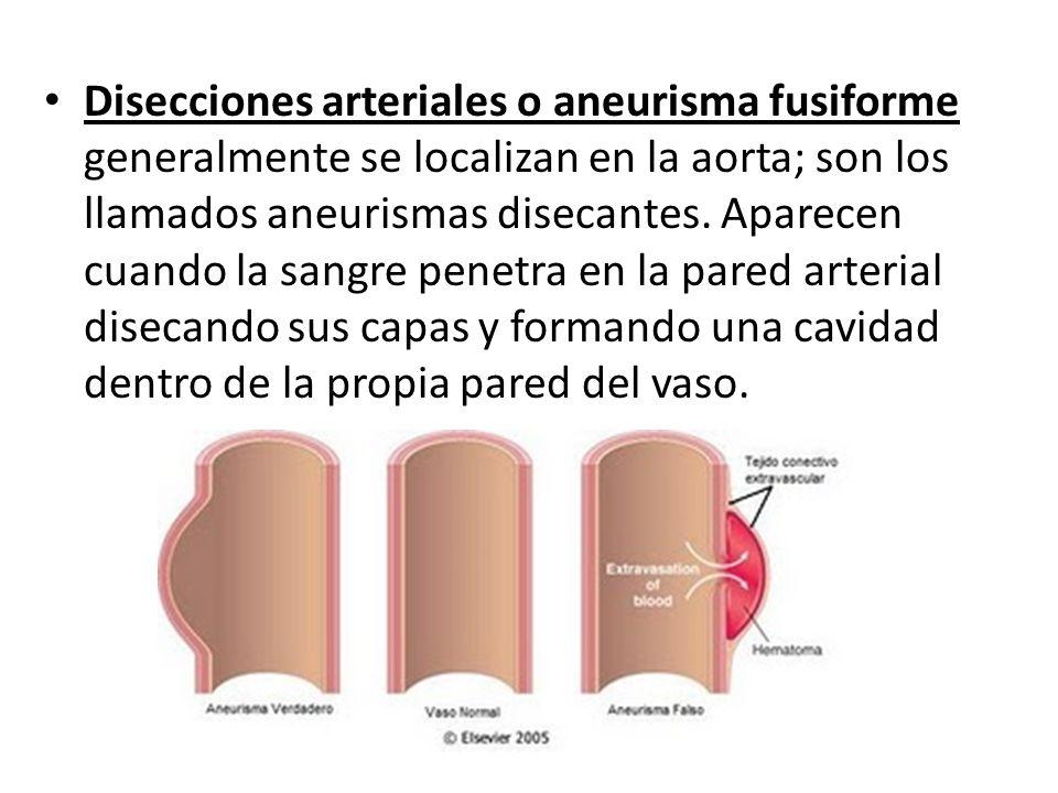 Disecciones arteriales o aneurisma fusiforme generalmente se localizan en la aorta; son los llamados aneurismas disecantes. Aparecen cuando la sangre