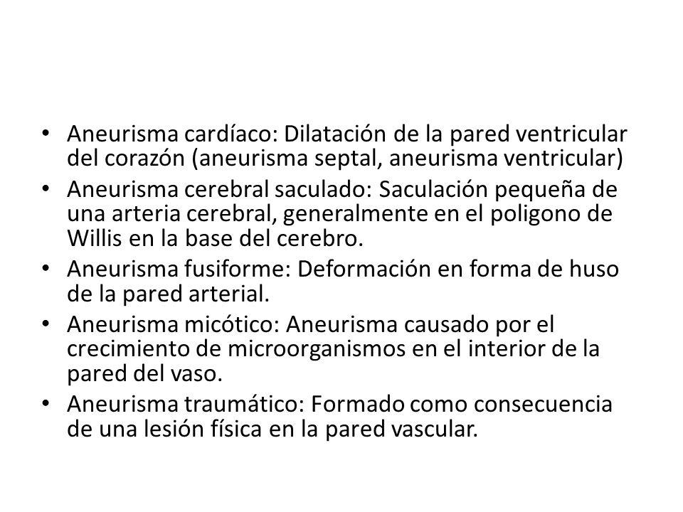 Aneurismas Cerebrales El aneurisma cerebral es una dilatación focal de una arteria por una debilidad de su pared.