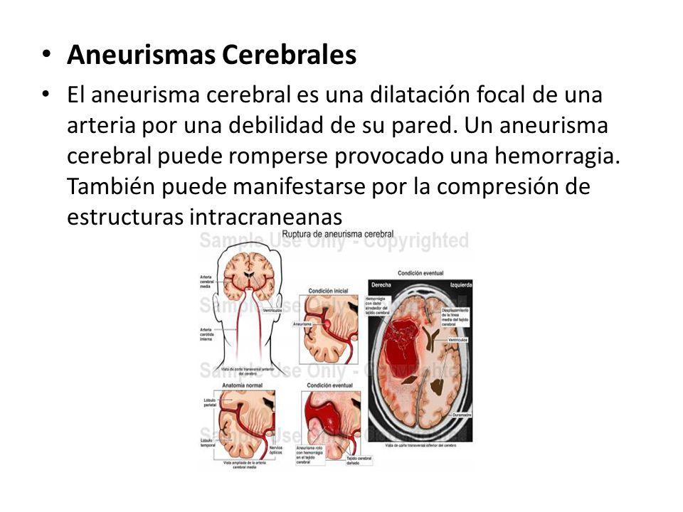 Aneurismas Cerebrales El aneurisma cerebral es una dilatación focal de una arteria por una debilidad de su pared. Un aneurisma cerebral puede romperse