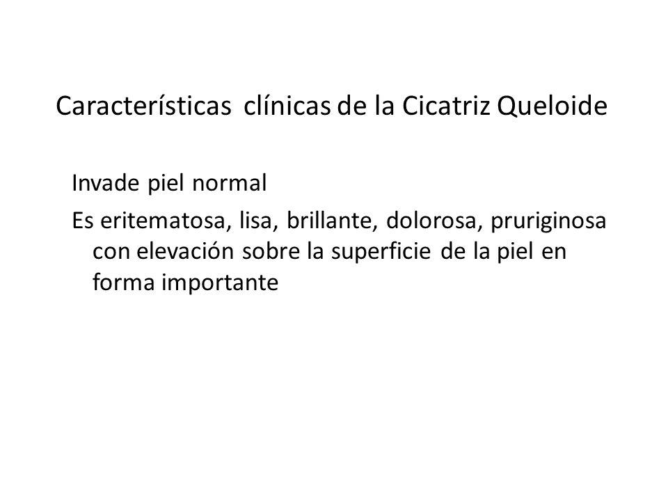 CICATRIZACION PATOLOGICA Características clínicas de la Cicatriz Queloide Invade piel normal Es eritematosa, lisa, brillante, dolorosa, pruriginosa co