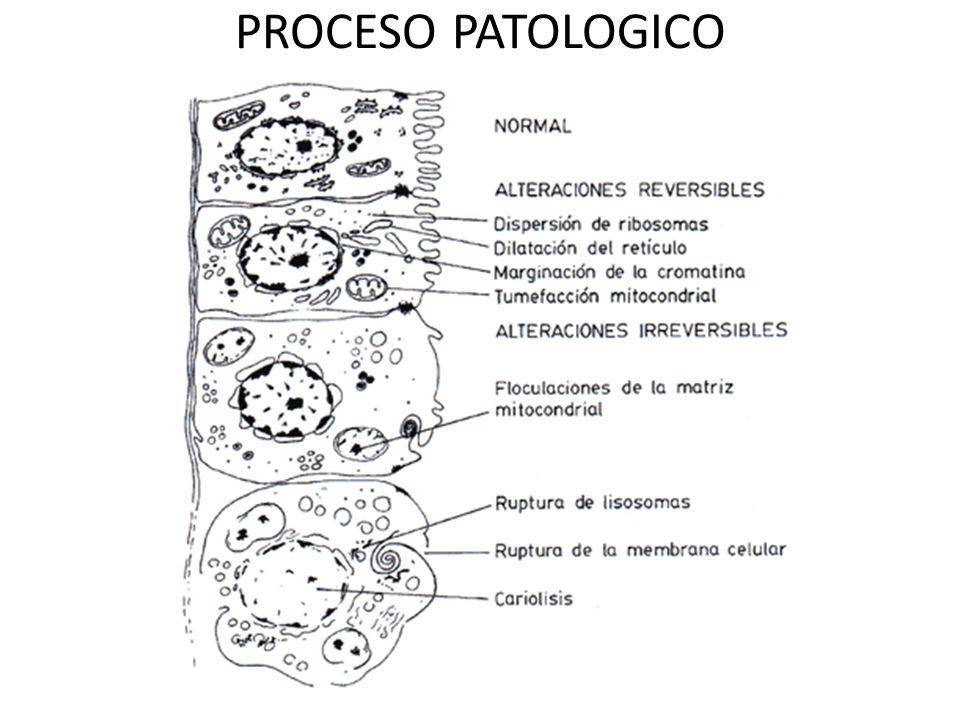 PROCESO PATOLOGICO