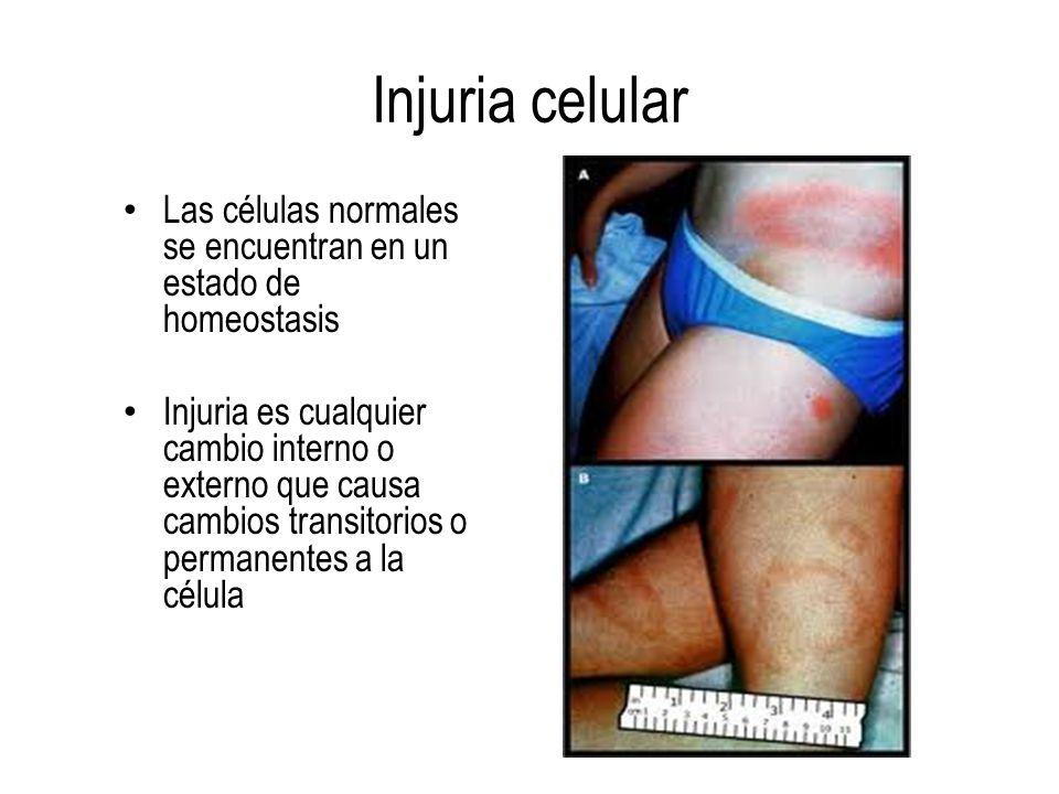 Injuria celular Las células normales se encuentran en un estado de homeostasis Injuria es cualquier cambio interno o externo que causa cambios transit