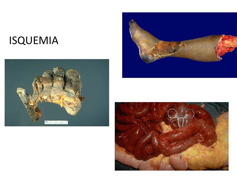 HIPOXIA Según su patógenia pueden distinguirse las siguientes cuatro formas: 1-Hipoxia anóxica 2-Hipoxia anémica 3-Hipoxia circulatoria 4-Hipoxia histotóxica
