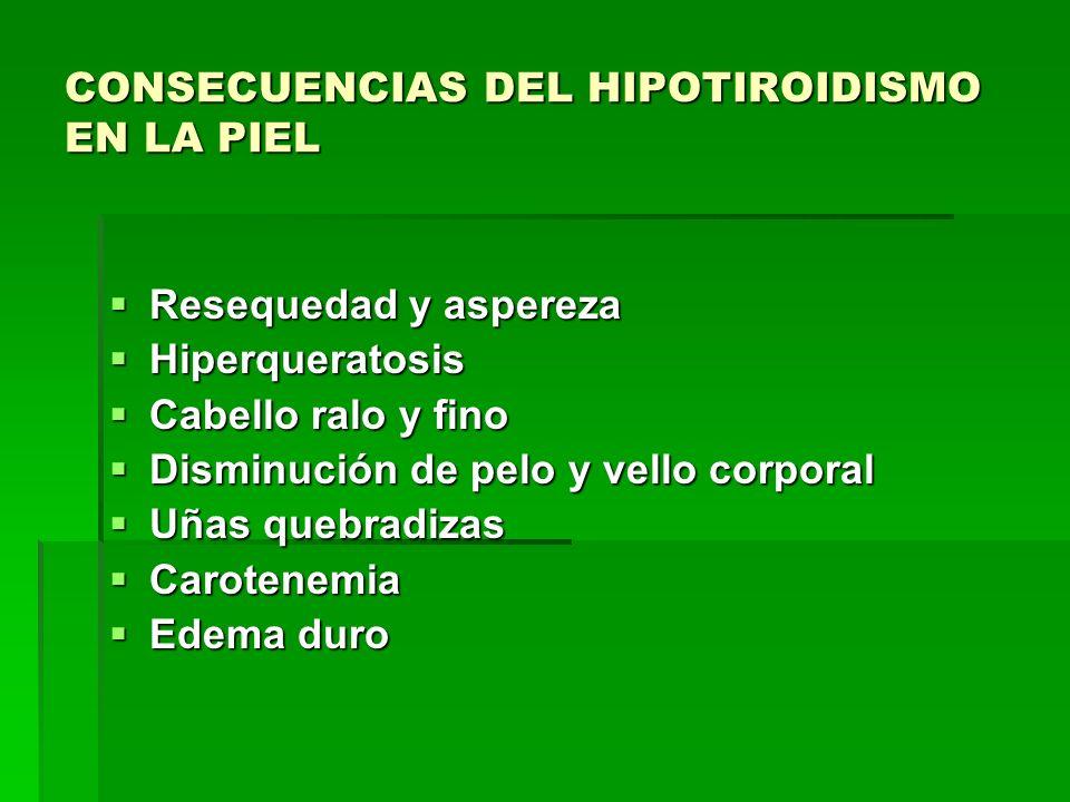 CONSECUENCIAS DEL HIPOTIROIDISMO EN LA PIEL Resequedad y aspereza Resequedad y aspereza Hiperqueratosis Hiperqueratosis Cabello ralo y fino Cabello ra