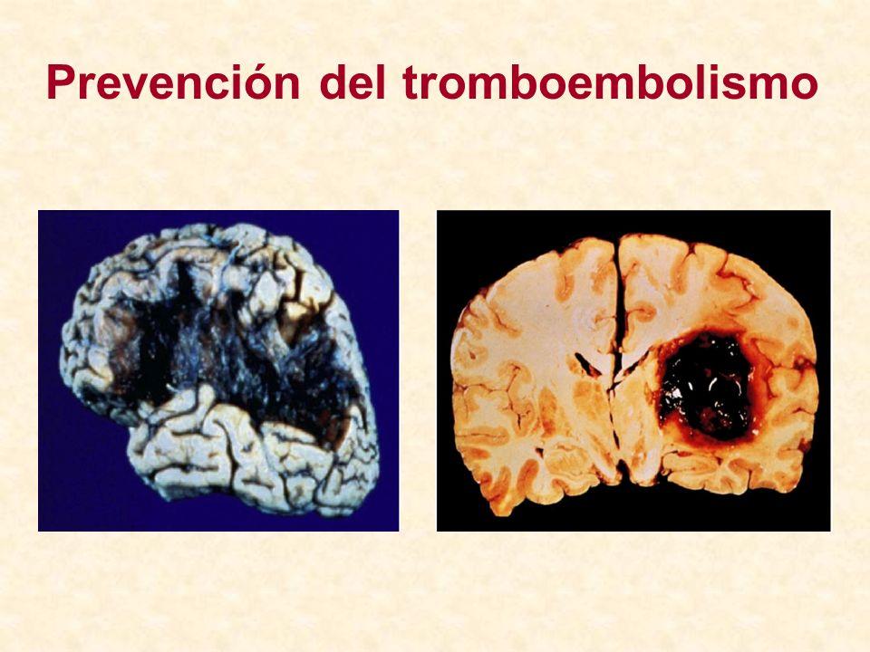 Prevención del tromboembolismo