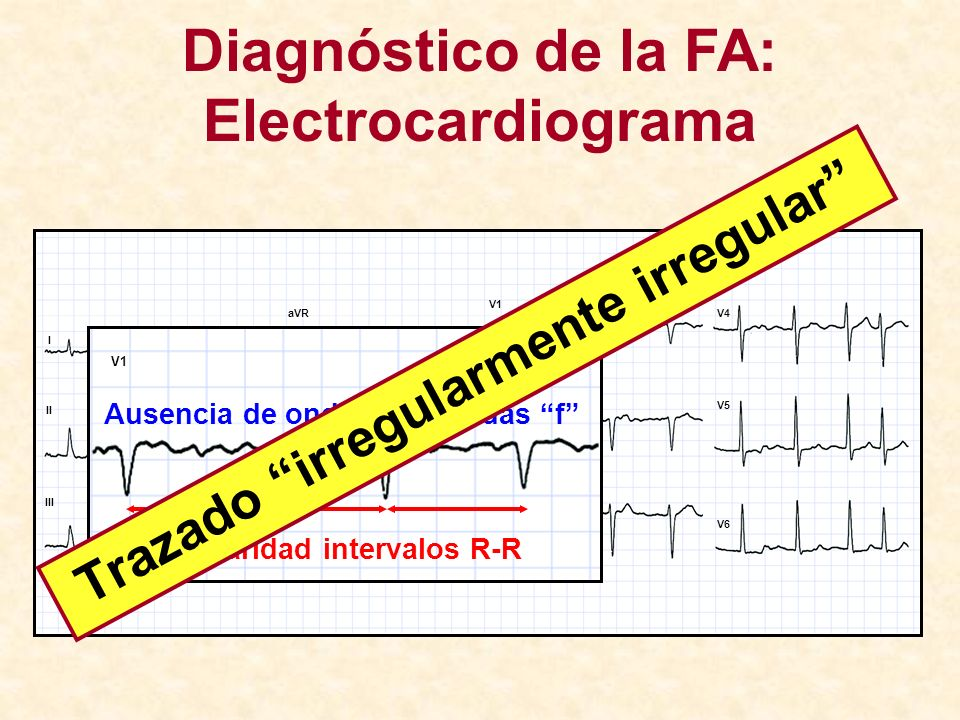www.escardio.org/guidelines Appropriate antithrombotic therapy Clinical evaluation Paroxysmal Persistent Permanent Long-standing persistent Rhythm control Remains symptomatic Rate control Failure of rhythm control ¿Qué dicen las Guías de 2010?