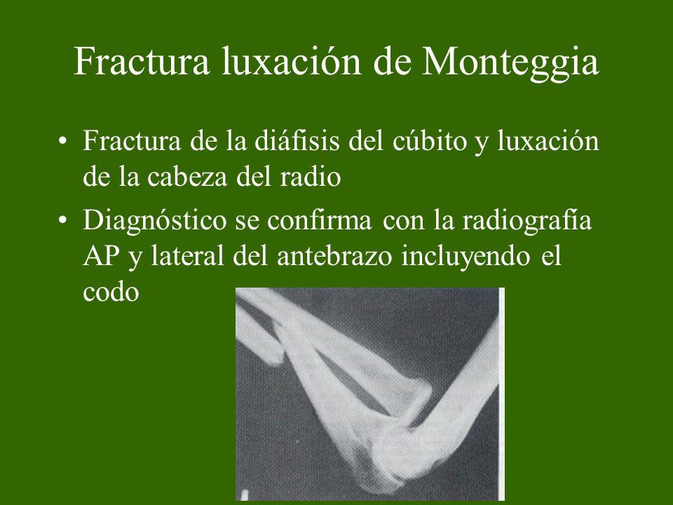 Fractura luxación de Monteggia Fractura de la diáfisis del cúbito y luxación de la cabeza del radio Diagnóstico se confirma con la radiografía AP y la