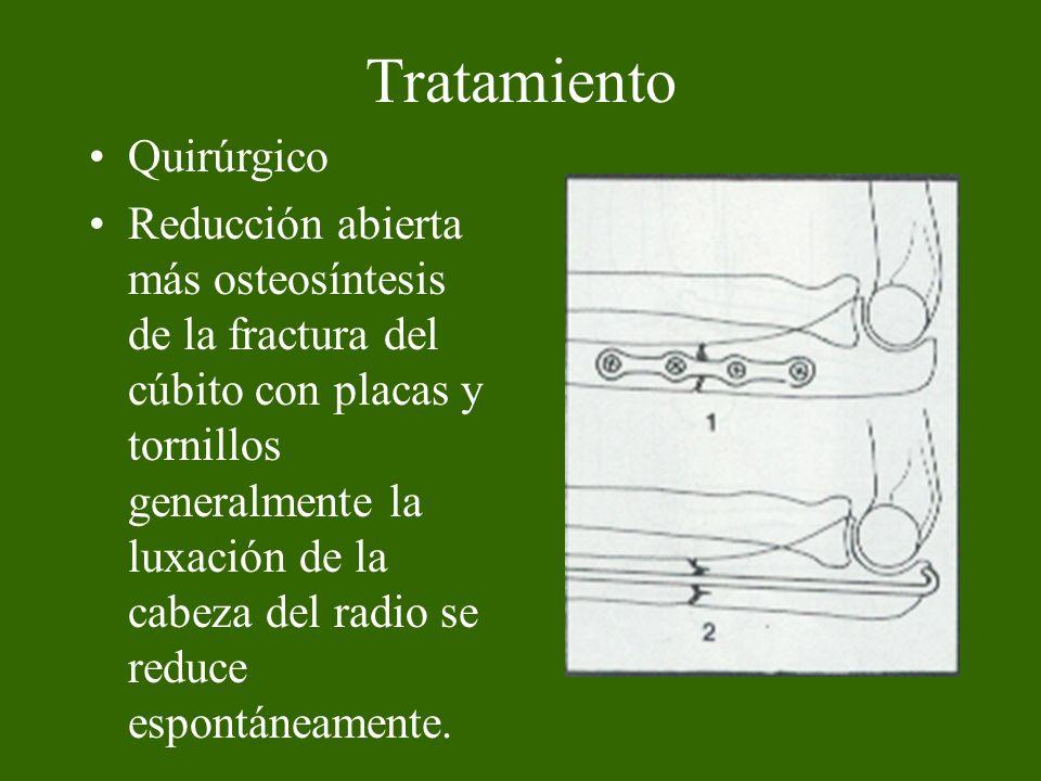 Tratamiento Quirúrgico Reducción abierta más osteosíntesis de la fractura del cúbito con placas y tornillos generalmente la luxación de la cabeza del