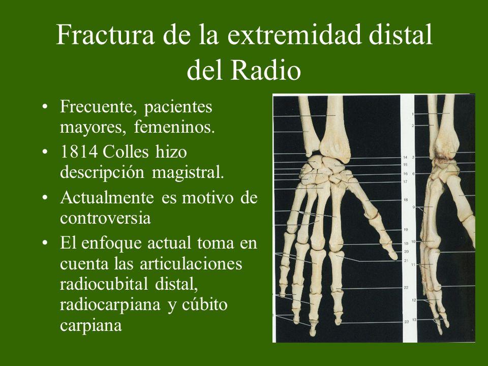 Fractura de la extremidad distal del Radio Frecuente, pacientes mayores, femeninos. 1814 Colles hizo descripción magistral. Actualmente es motivo de c