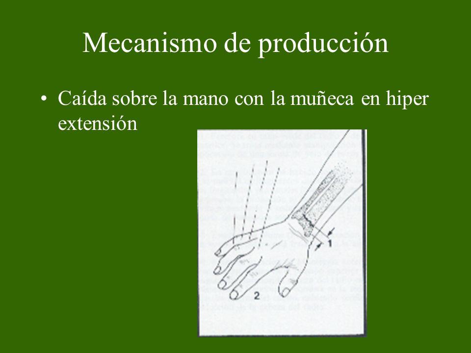 Mecanismo de producción Caída sobre la mano con la muñeca en hiper extensión