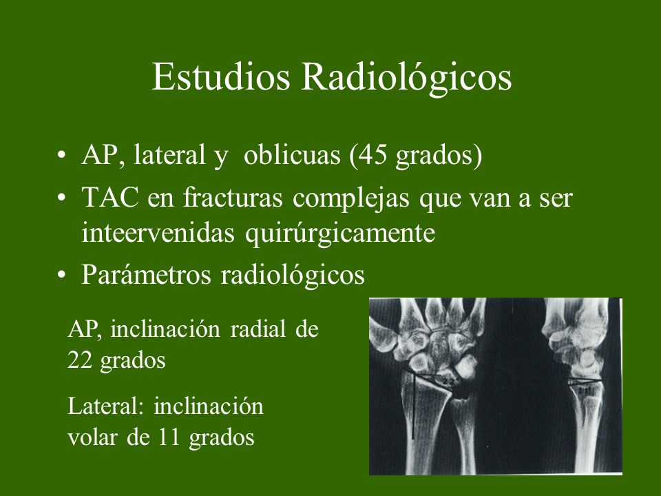 Estudios Radiológicos AP, lateral y oblicuas (45 grados) TAC en fracturas complejas que van a ser inteervenidas quirúrgicamente Parámetros radiológico