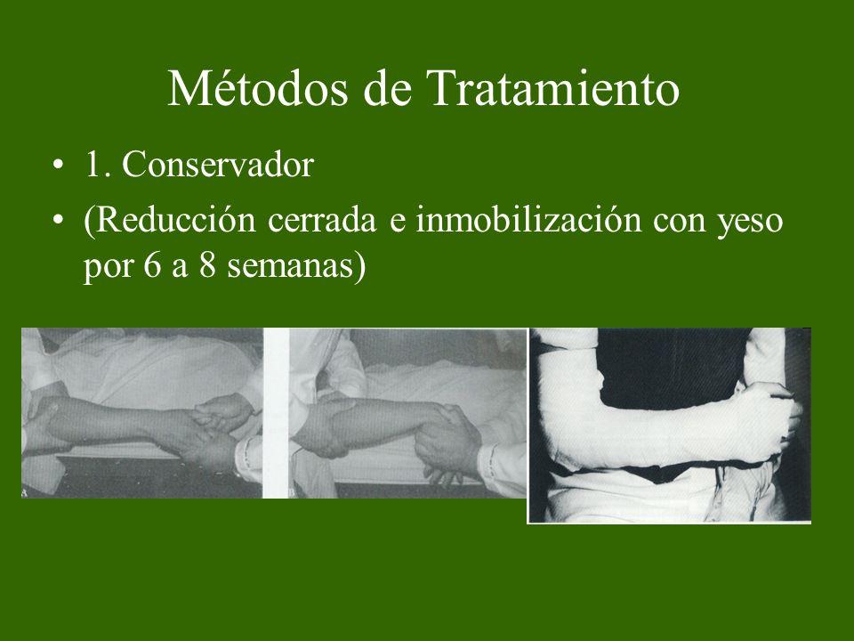 Métodos de Tratamiento 1. Conservador (Reducción cerrada e inmobilización con yeso por 6 a 8 semanas)