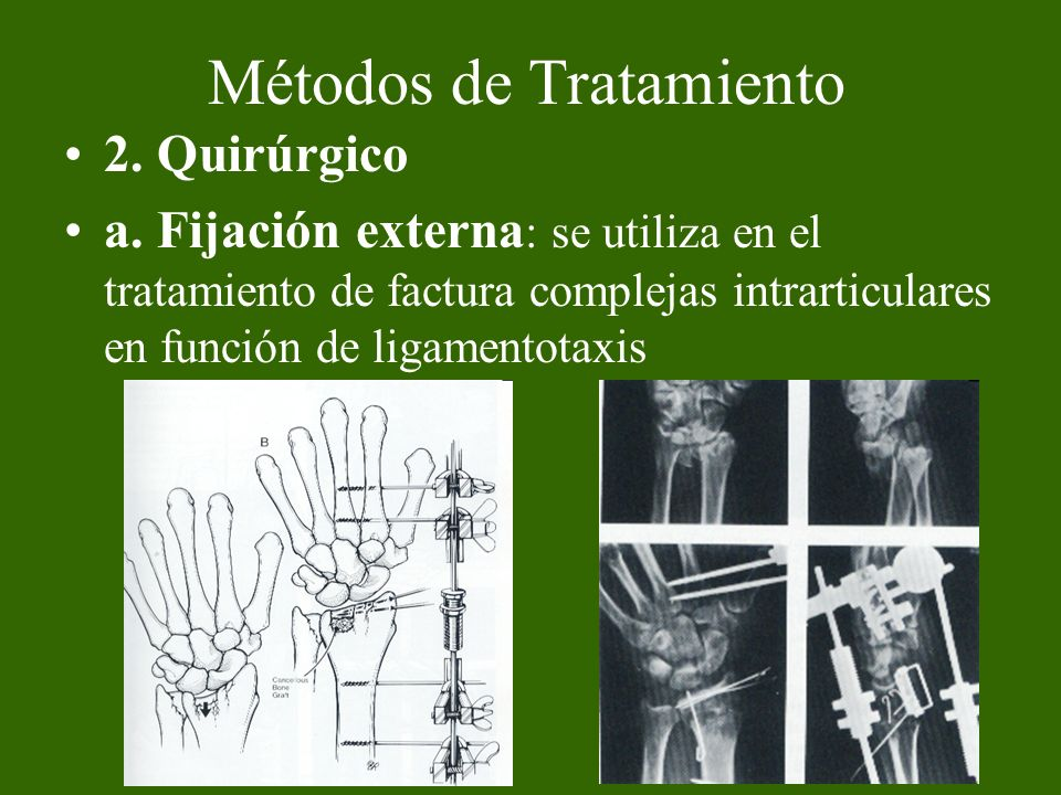 Métodos de Tratamiento 2. Quirúrgico a. Fijación externa : se utiliza en el tratamiento de factura complejas intrarticulares en función de ligamentota