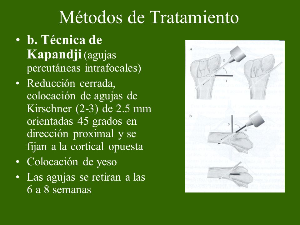 b. Técnica de Kapandji (agujas percutáneas intrafocales) Reducción cerrada, colocación de agujas de Kirschner (2-3) de 2.5 mm orientadas 45 grados en