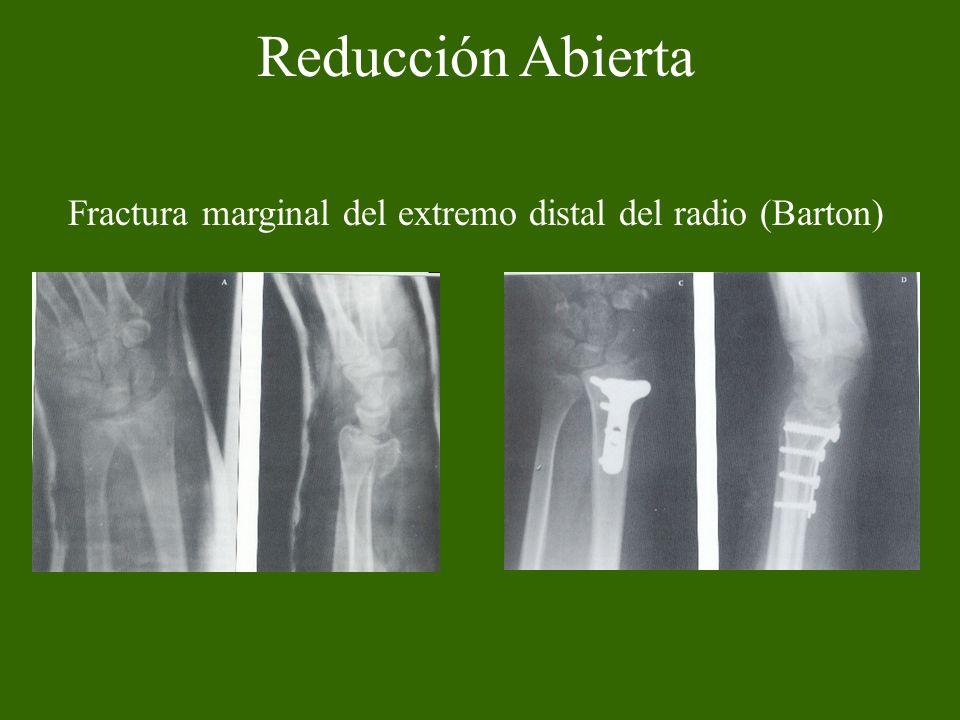 Reducción Abierta Fractura marginal del extremo distal del radio (Barton)