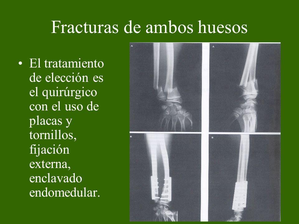 Fracturas de ambos huesos El tratamiento de elección es el quirúrgico con el uso de placas y tornillos, fijación externa, enclavado endomedular.