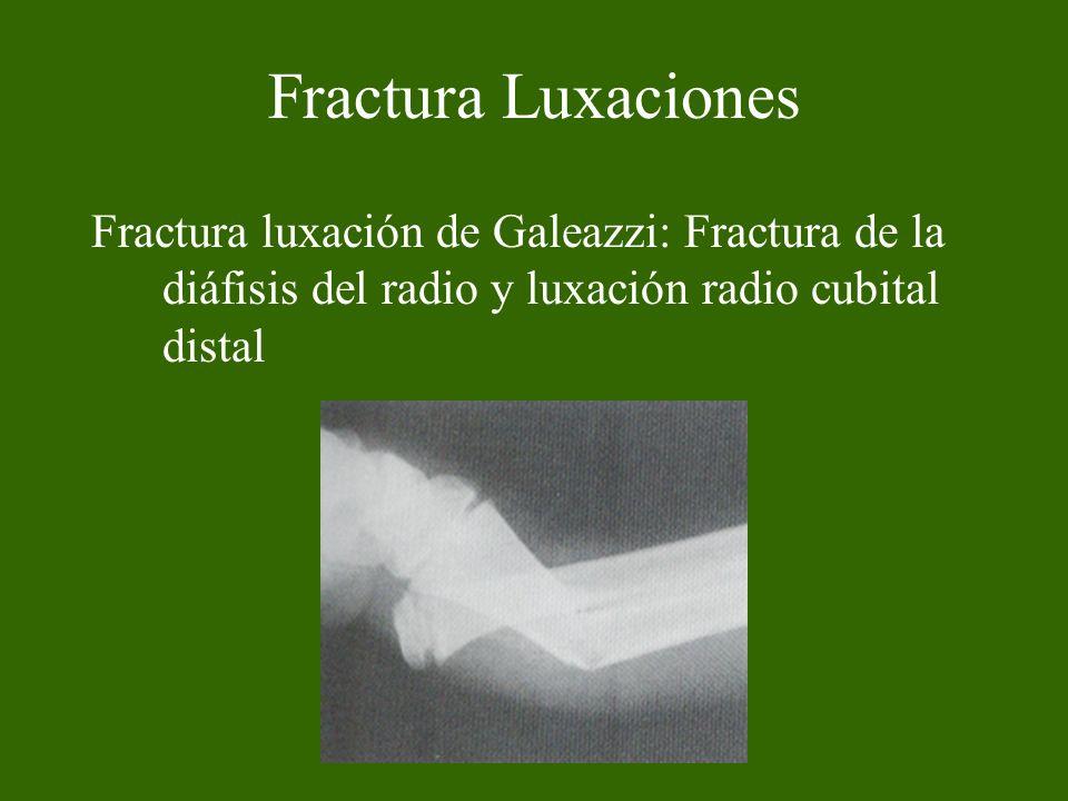 Fractura luxación de Galeazzi: Fractura de la diáfisis del radio y luxación radio cubital distal Fractura Luxaciones
