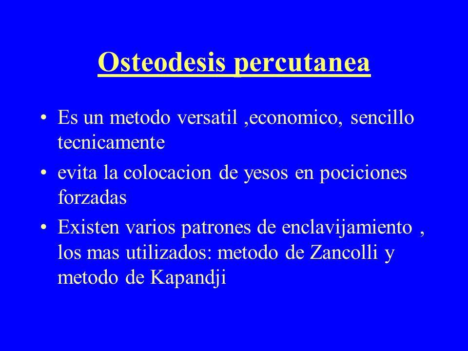 Osteodesis percutanea Es un metodo versatil,economico, sencillo tecnicamente evita la colocacion de yesos en pociciones forzadas Existen varios patron